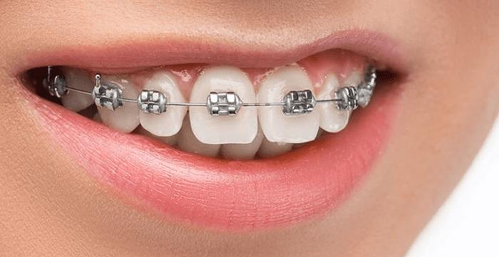 Damon Braces - Magic Smiles - Orthodontist in Portland, Beaverton, and Scappoose, OR